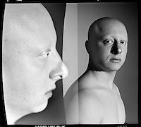 Alopecians