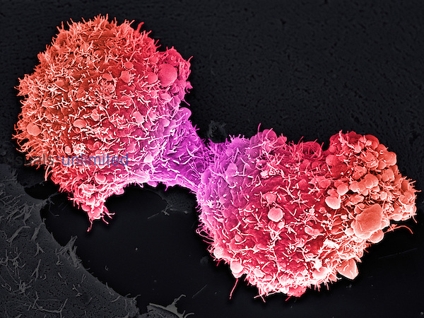 Pancreatic cancer cells completing division. SEM X3700 at 4 x 5 inches