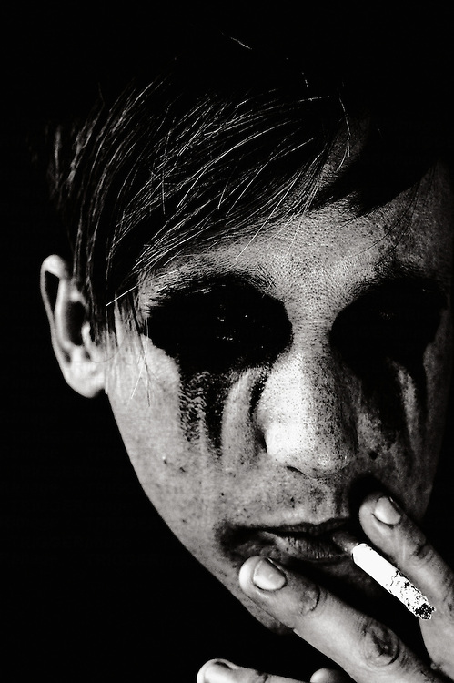 young man with blackened eyes smoking