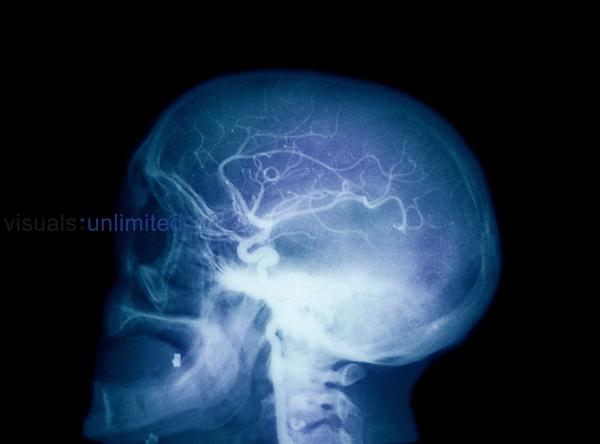 X-ray of left internal carotid angiogram.