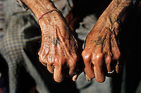 A man and his brother show the Hindu symbols they had tattooed on their hands to prove their faith during the violence of the Partition of India and Pakistan, when they both travelled down the Grand Trunk Road from their homes in Pakistan to newly independent India.