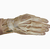Dorsum of the right hand and wrist, extensor tendons, retinaculum and resin injected synovial sheaths.