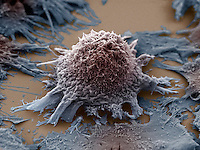 Lung cancer cell. SEM X3500.  Lung cancer cells grow uncontrolled in lung tissue and can form malignant tumors.  Lung cancer is often associated with carcinogens found in tobacco smoke.
