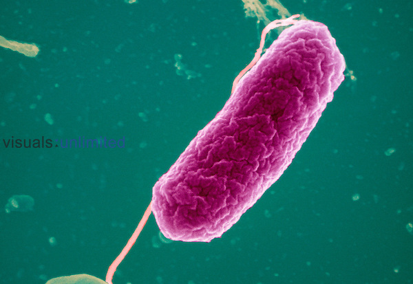 Plesiomonas shigelloides Bacteria, gram-negative bacilli pathogens