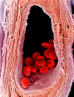 Red blood cells or erythrocytes in a vein. Red blood cells are responsible for transporting oxygen throughout the body. SEM X6500  **On Page Credit Required**