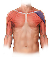 Biomedical illustration of  an anterior view of male chest muscles. The pectoralis and deltoid muscles are shown ghosted beneath the skin and the left deltoid is color coded purple to indicate injury.