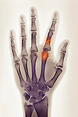 Hand x-ray of a 30 year old man showing fractures of the index finger proximal phalanx and metacarpal