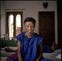 BANGLADESH. Dhaka. June 2005..Munira. 15 years old. Was attacked after refusing a marriage proposal when she was 13 years old..©Andrew Testa