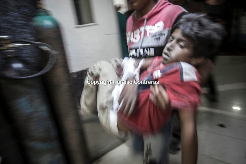 A Syrian child arrives at the hospital to get medical treatment after being injured by aircraft shelling carried out by Assad'a army over a residential neighborhood of Aleppo City. The Hospital located at the northeast area of the City was targeted four times by aircraft shelling, depite the bombing the Hospital still operating and giving medical care to the civilian population.