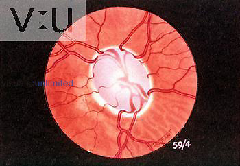 Extreme Glaucomatous cupping