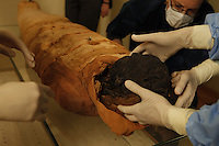 "GEORGES LABIT MUSEUM, TOULOUSE, FRANCE - MARCH 03 - EXCLUSIVE : A view from behind of the Egyptian mummy with the hands of the nurses taking her head off with Professor Pomar looking carefully at the operation in the background on March 3, 2009 in the Georges Labit Museum, Toulouse, France. The Egyptian mummy arrived in Toulouse in 1849, encased in a sarcophagus labelled ""In-Imen"" from the 7th or 8th century BC. It is preserved at the Labit Museum since 1949. The mummy is now the subject of a very rare tissue sampling operation to determine its datation.  (Photo by Manuel Cohen)"