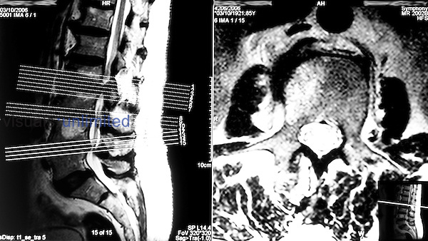 A Magnetic Resonance Imaging (MRI) scan showing evidence of degenerative disc disease and spinal stenosis. . .The discs between lumber vertebraes L2-L5 are clearly bulging out, with the disc between L2 and L3 showing significant herniation onto the spinal cord. The collagen II-based centre of the intervertebral discs is known as the nucleus pulpo Royalty Free