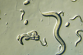 Nematode adult, eggs, and young (Caenorhabditis elegans). LM