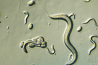 Nematode adult, eggs, and young (Caenorhabditis elegans). LM