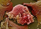 Lung cancer, SEM