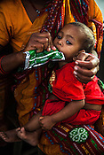 A woman feeds RUTF to her son at the government health centre in  Hanuman Nagar, Saptari, Nepal.