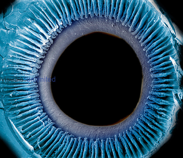 Eye showing the inner surface of the iris, pupil, and ciliary processes. The lens was removed to show the posterior surface of these structures. The iris regulates the amount of light that enters the pupil by changing its size and it is what gives the eye its color. SEM  **On Page Credit Required**