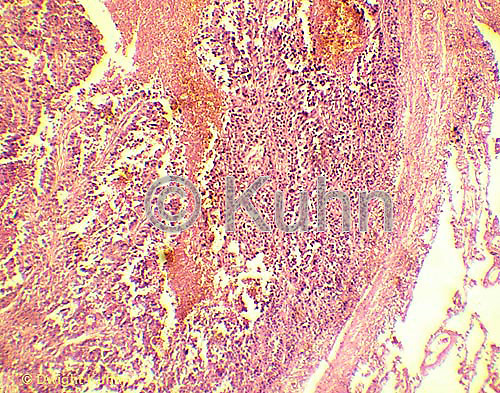 CZ18-012b  Lung Tissue - cancer, squamous cell carcinoma  35x