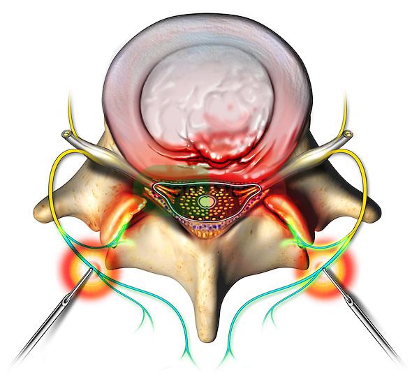 selective dorsal rhizotomy sdr surgery for cerebral
