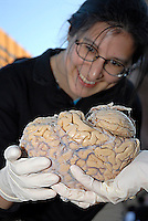 "A women holds a human brain during ""Brainfest"" in Atlanta, Georgia."