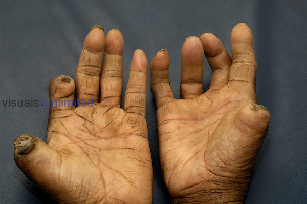 A patient with leprosy.is likely to have had the disease for thirty years or more.