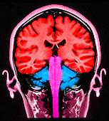 MRI brain scan, sagittal view, normal