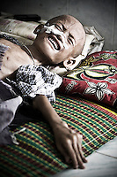 DROPS OF HOPE FOR THE HAPLESS. THE BURMA LITTLE CHILD