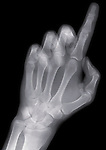 X-ray image of a reaching finger (blue on black) by Jim Wehtje, specialist in x-ray art and design images.