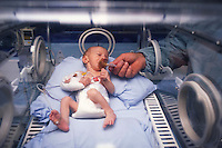 Ospedale San Camillo, Roma. Reparto di Chirurgia pediatrica..San Camillo Hospital, Rome. Department of Pediatric Surgery.Bambino prematuro in incubatrice. Premature baby in incubator....