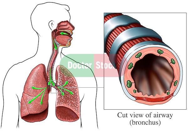 lung airways Gallery