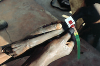 Angola. Cuando Cubango. Mavinga. Therapeutic and suplementary feeding center run by MSF (M?decins Sans Frontires) Switzerland. Every morning, children are weighed and their height measured to determine their degree of malnutrition. Arm of a young boy severely malnourished. Muac test for malnutrition's exam. © 2002 Didier Ruef