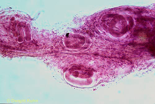 1Y02-005x  Trichinella - round worm parasite encyst in muscle - thread worm - Trichinella spiralis - 250x