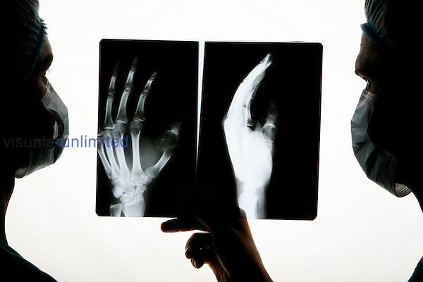 Two surgeons examine an x-ray of a hand before surgery.