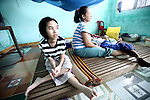 Mai Thi Mang, 21, a second generation victim of Agent Orange, sits with her mother and brother in their house south of Da Nang, Vietnam. Mang's father served as a bomb disposal soldier from 1975 to 1990 and  worked in many areas that had been sprayed with herbicides during the war. Mang is mentally disabled because of her father's exposure, and her 19-year-old brother suffers from disorders that have left him unable to talk or even sit up on his own.  The Vietnam Red Cross estimates that 3 million Vietnamese suffer from illnesses related to dioxin exposure, including at least 150,000 people born with severe birth defects since the end of the war. The U.S. government is paying to clean up dioxin-contaminated soil at the Da Nang airport, which served as a major U.S. base during the conflict. But the U.S. government still denies that dioxin is to blame for widespread health problems in Vietnam and has never provided any money specifically to help the country's Agent Orange victims.  May 30, 2012.