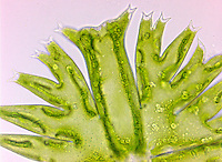 Green Algae Micrasterias, A flat placoderm desmid with highly lobed semicells.