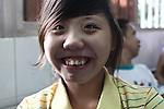 A disabled girl smiles as her picture is made in the Agent Orange children's ward of Tu Du Hospital in Ho Chi Minh City, Vietnam.  About 500 of the 60,000 children delivered each year at the maternity hospital, Vietnam's largest, are born with deformities, some because of Agent Orange, according to doctors. May 1, 2013.