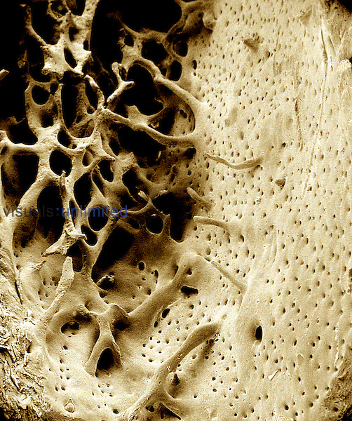 This view of the diaphyseal region of the femur shows the internal cancellous or spongy bone organization and the external or compact bone of the shaft.  SEM X105  **On Page Credit Required**