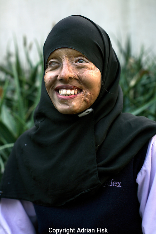 Now nearly blind 21 yr old Saira Liaqat's face was destroyed in 2003 by her soon to be husband who threw acid over her. Her punishment was for refusing to leave her parents home and go with him to his house..Saira's face has been partially reconstructed by doctors funded by a Lahore based charity called Smile Again. Each year across pakistan thousands of women have acid thrown over them by men.