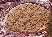 Cross-section of skeletal or striated muscle surrounded by a connective tissue sheath called the epimysium. Inside the fascicles are individual muscle fibers. Also note the openings of the blood vessels. SEM X215  **On Page Credit Required**
