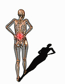 Biomedical illustration showing a person suffering from back pain