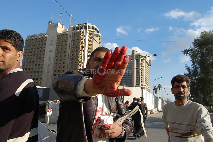BAGHDAD, IRAQ:  A wounded man with blood on his hands after an explosion outside the Sheraton Hotel, January 25, 2010...At least 36 people have died in three large explosions apparently targeting hotels in the heart of Iraq's capital..More than 70 people were injured in the Baghdad blasts, which officials said were caused by suicide car bombers.  They struck near the Sheraton, Babylon and Hamra hotels, which are popular with Western businessmen and media....Photo by Qeas Kazm/Metrography
