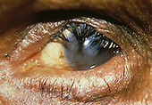 End stage trachoma with inverted eyelids, corneal scarring, and corneal neovascularization leading to blindness.