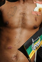 A man with wounds to his torso among African National Congress (ANC) supporters at the party's final Siyanqoba (victory) rally held at the Ellis Park Stadium in Johannesburg before the 2009 general election.