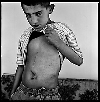 Aita Chab, South Lebanon, September 2006.Hassan Hussein Tahini, 11, was eviscerated by shrapnels from an Israeli cluster bomb sub-munition 3 days after the end of the war. He was declared 'in deep medical shock, critical with very little chance of survival' on arrival  by the Bent Jbeil hospital doctor who stabilized him after the accident; a month later he miraculously recovered but still suffers from abdominal pains and remains in a state of psychological shock..He was  wounded while playing in the village together with 2 other children: Sukhna Marai, 11, who was seriously injured in the abdomen (liver, stomach, pancreas) as well as in the left arm and leg and with her cousin Marwa Marai, 12, who was injured at the elbow and on the legs .