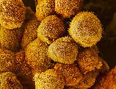 Human pancreatic cancer cells. SEM X3300.