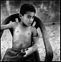 Blida, South Lebanon, Sept.  2006.Ahmad Shibli, 11, was seriously injured in the abdomen  (liver, kidney) and in the left arm by shrapnels from an Israeli cluster bomb sub-munition after the end of the war. He was wounded while playing in the village together with 3 other children: Sohar Hassan, 10, Abbas Abbas, 5, and Ali Hassan, 11.