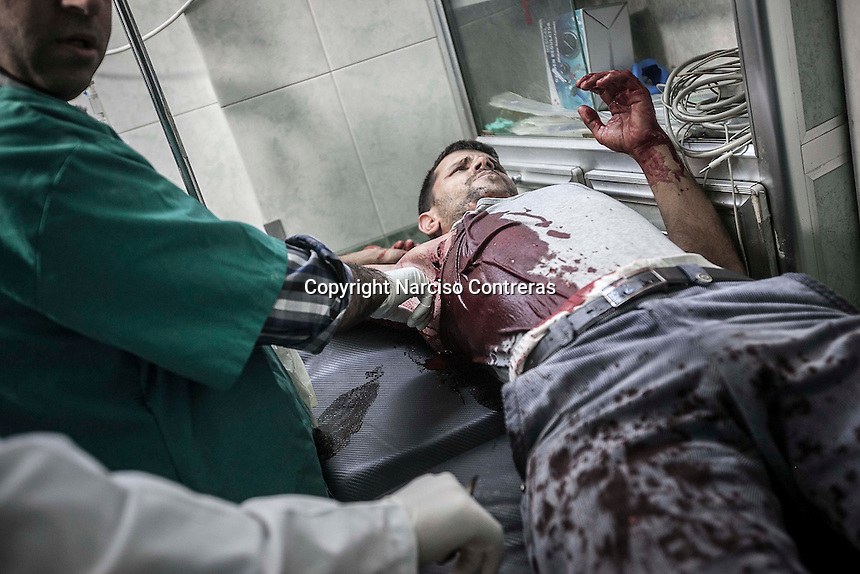 A Syrian civilian lies down in a trolley as he gets medical treatment after was shot by sniper in the streets of Aleppo City. The Hospital located at the northeast area of the City receives by day dozens of wounded civilians after being injured by aircraft shelling, sniper or street fighting.