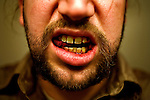 Having my wisdom teeth extracted.  Lakewood, Colo.