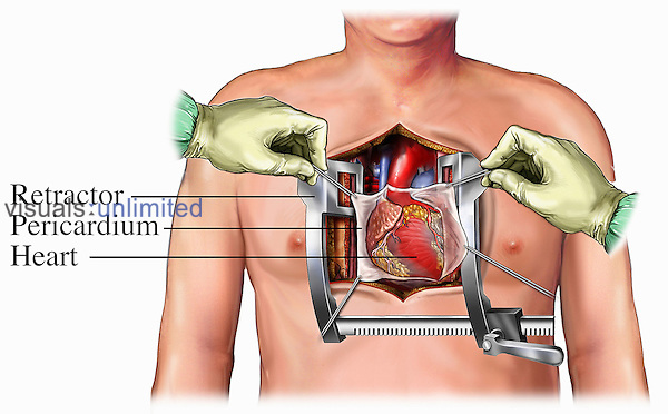 Medical illustration depicting a coronary artery surgical bypass procedure. The chest and pericardium have been incised and retracted to expose the heart and the great vessels, including the aorta, superior vena cava, and pulmonary artery.