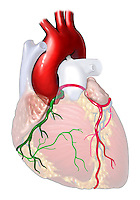 Biomedical illustration showing that both the right and left coronary arteries originate from same left aortic sinus and that the RCA is squeezed between the walls of the aorta and the pulmonary trunk.